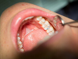 Smile examined after metal-free restoration placement