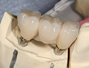Model of dental implant retained bridges