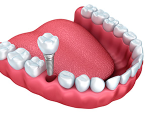 Animation of dental implant crown placement