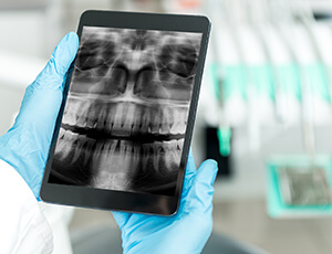 X-rays viewed on tablet