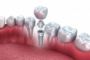dental implant abutment crown gums