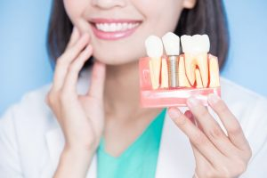 woman holding dental implant