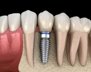 Image used to show the types of dental implants